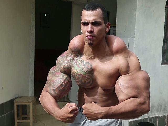Il famigerato olio synthol wallace opinion